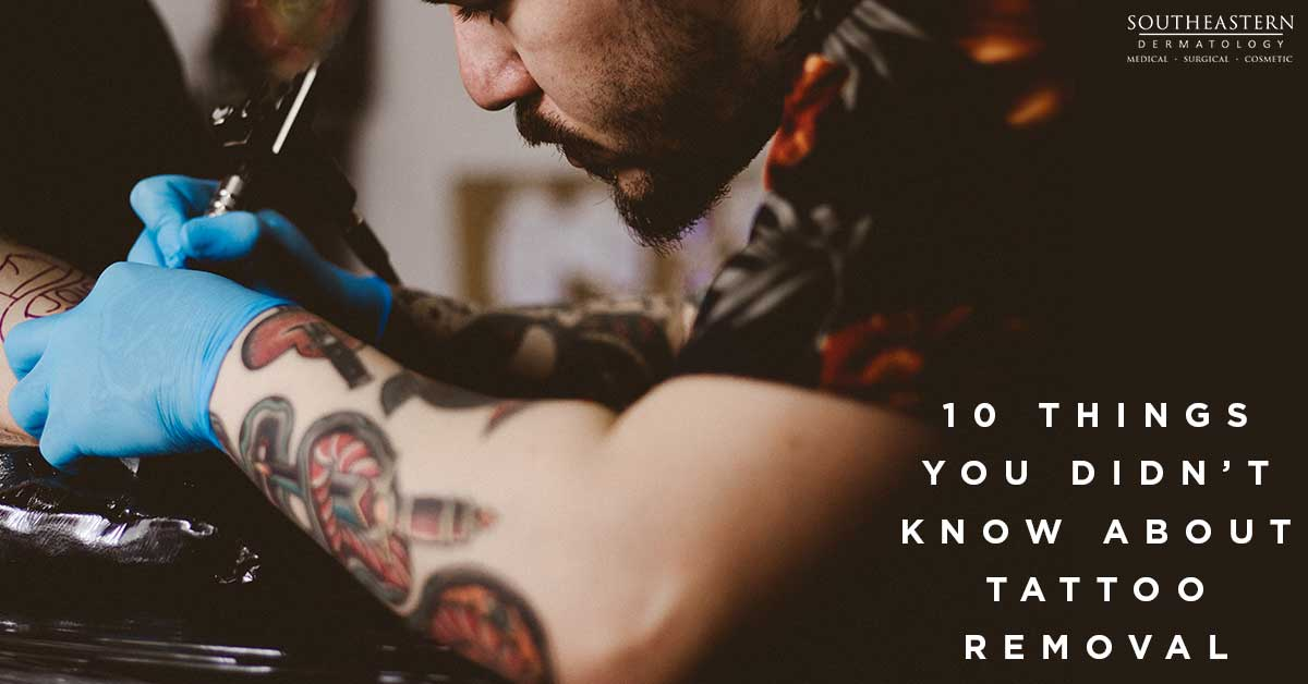 10 Things You Didn't Know About Tattoo Removal