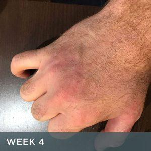 Eczema Treatment with Avéne Cicalfate