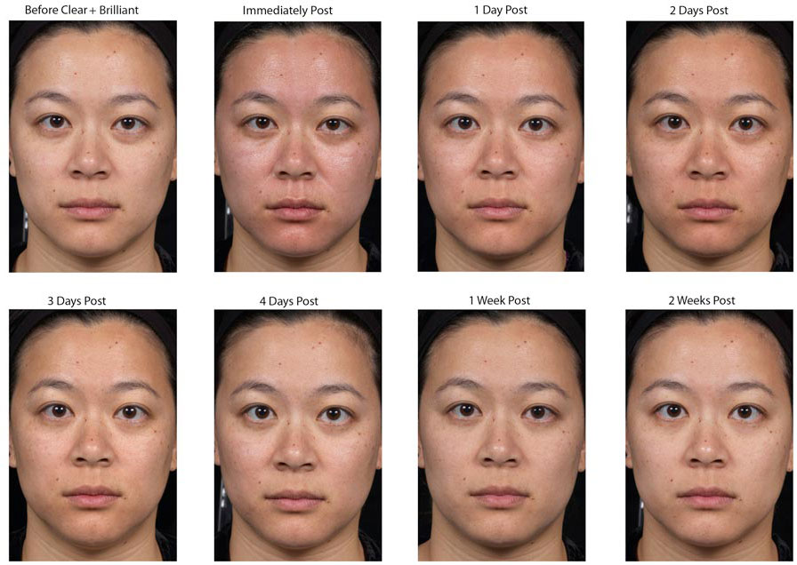 Clear And Brilliant Before And After Photos Cosmetic