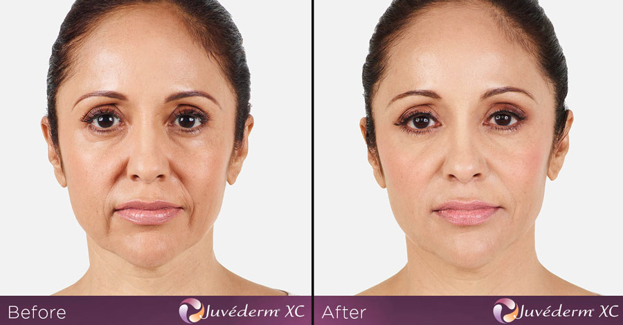 Dermal Fillers Before and After Photos   Cosmetic