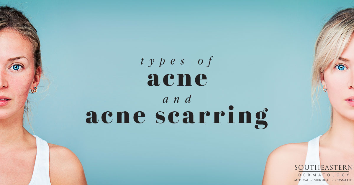 Different Types Of Acne & Acne Scarring