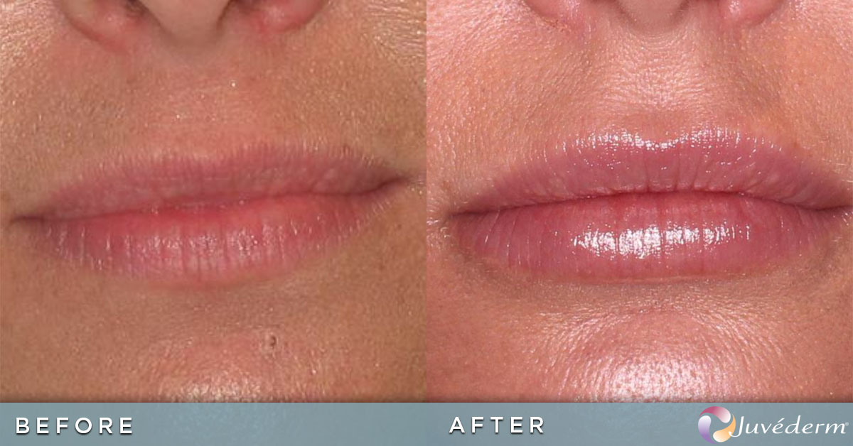 Lip Augmentation | Before and After Photos | Juvederm