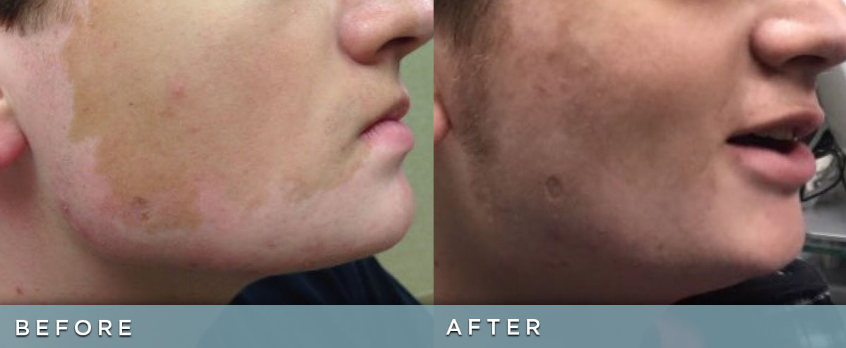 Picosure Focus Before Amp After Photos Cosmetic Dermatology