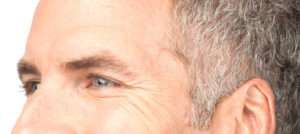mens botox before and after picture
