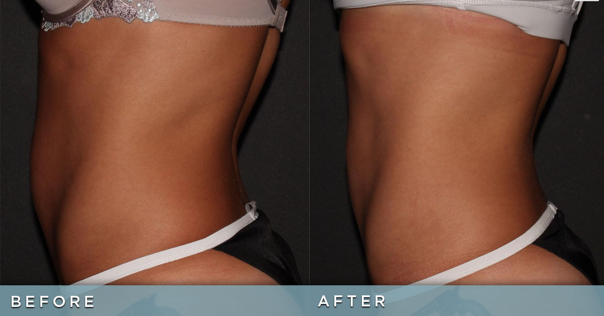 BodyTite and FaceTite: Before & After