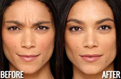 what is botox good for