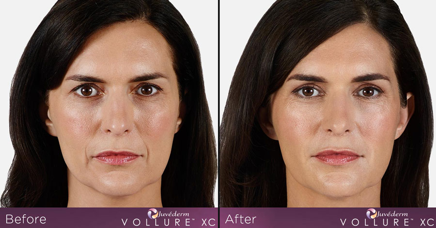 juvederm vollure xc