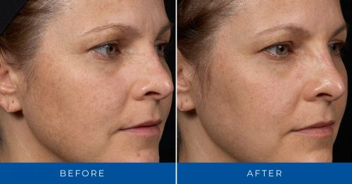 Clear + Brilliant Before & After Photos