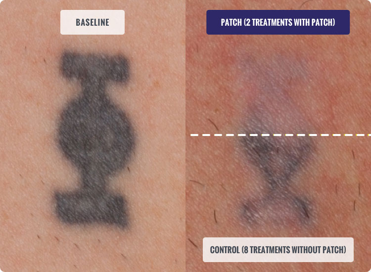 Faster Tattoo Removal With The DESCRIBE Patch