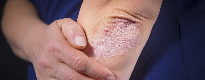 Eczema Treatment Knoxville   Symptoms, Types + Treatments in