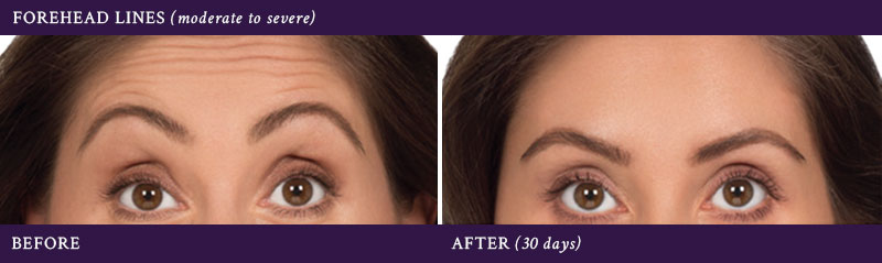 Before & after Botox injections in the forehead (30 days)