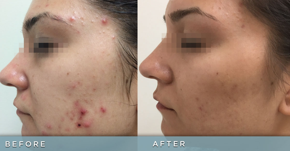Fractora for active cystic acne