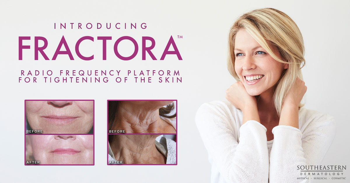 Introducing Fractora in Knoxville, TN