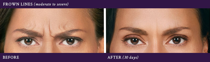 Before & after Botox injections between the eyebrows (30 days)
