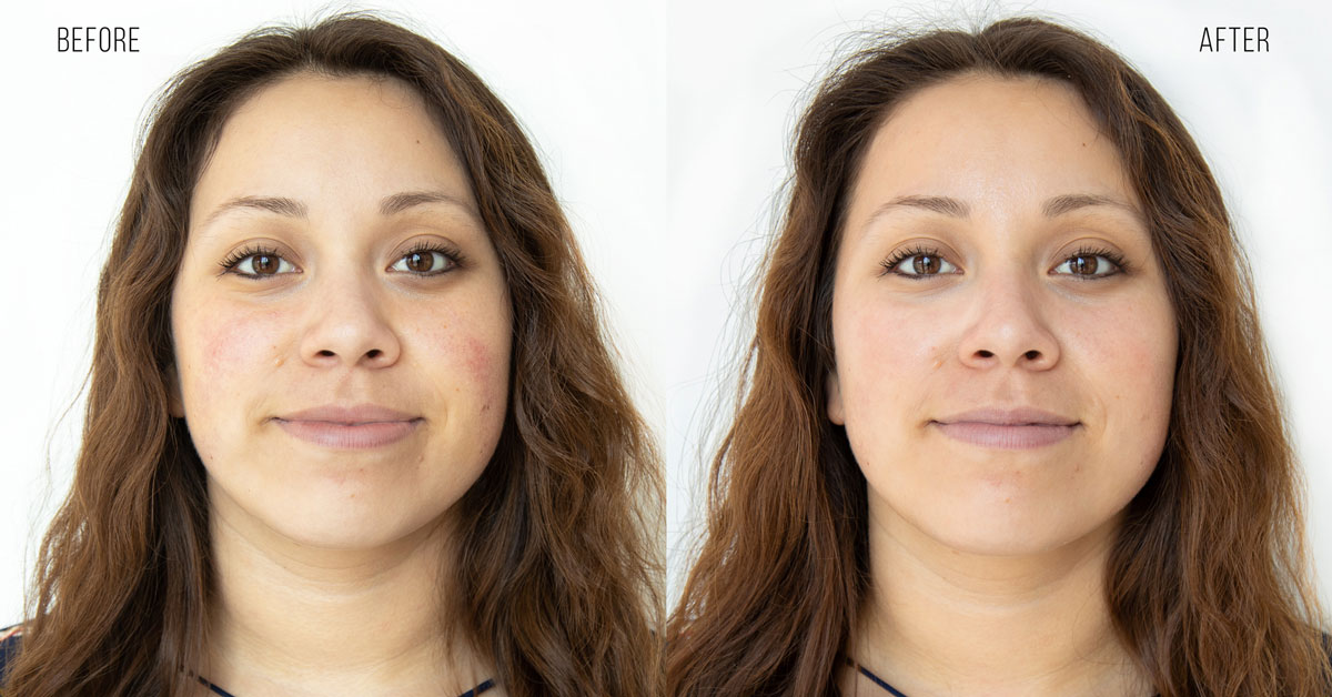 Before & after a HydraFacial treatment