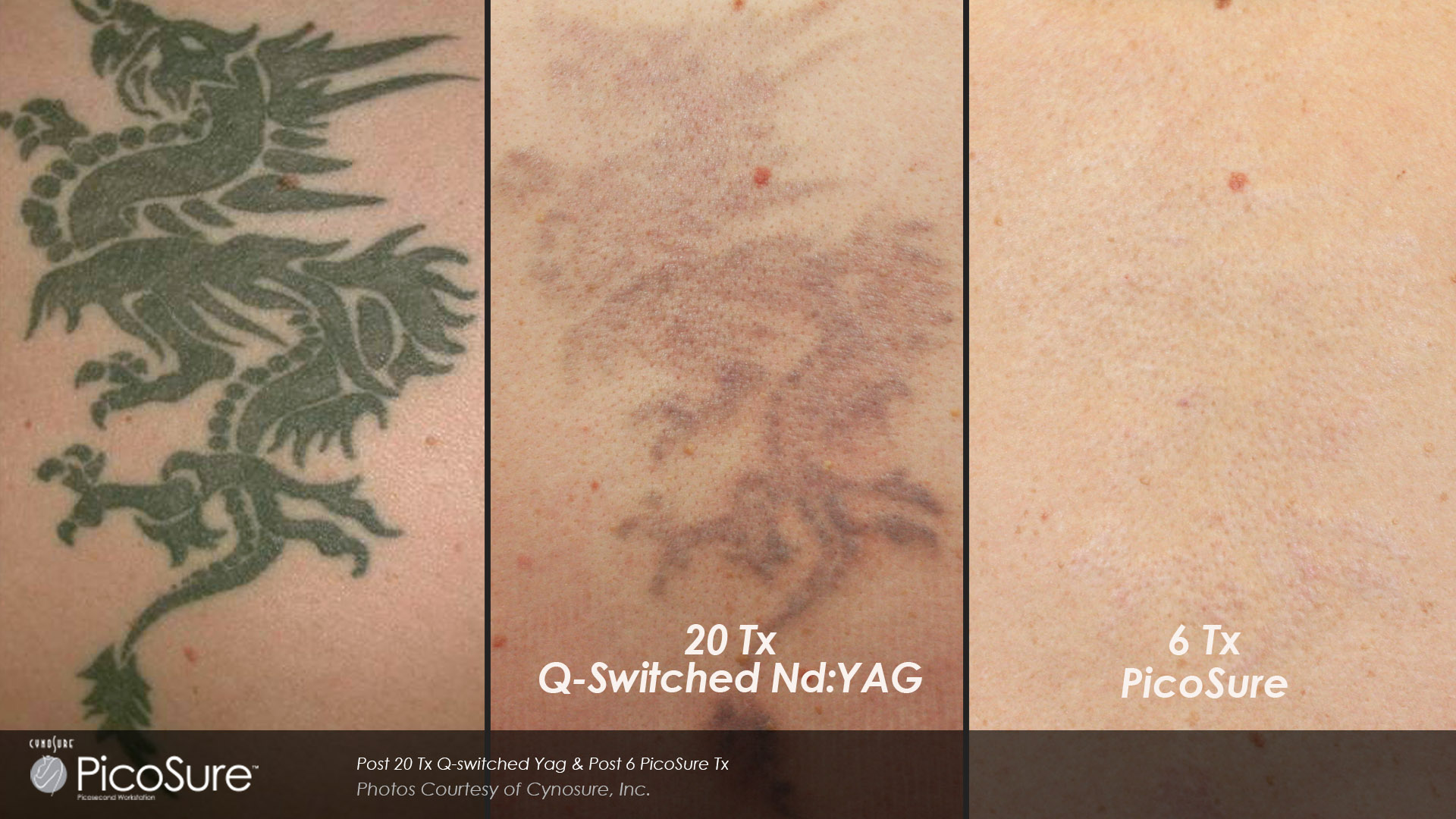 Laser Tattoo Removal Before And After Photos Cosmetic Dermatology