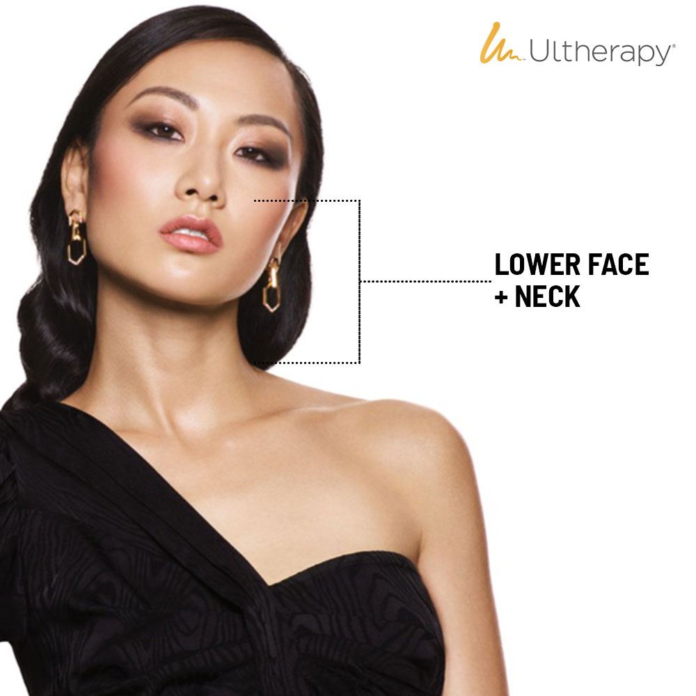 Facial Contouring Ultherapy Lower Face + Neck