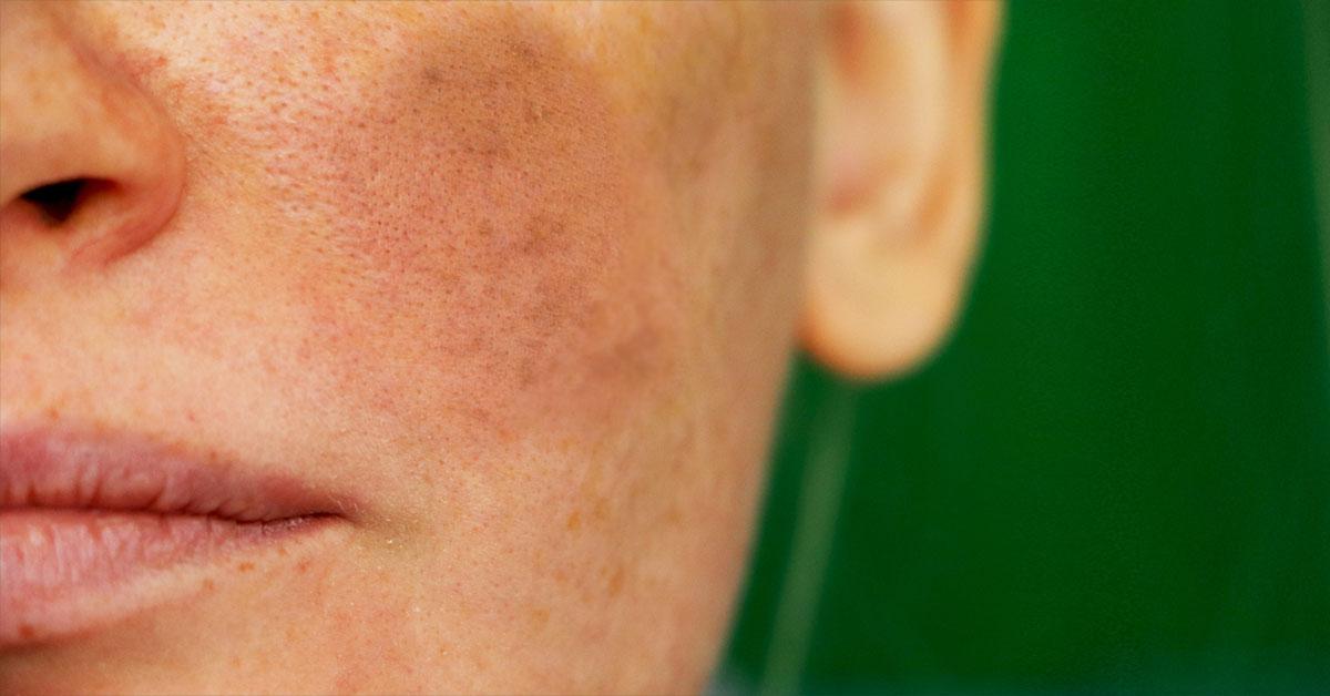 Melasma Treatment & Causes
