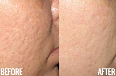 microneedling knoxville tn