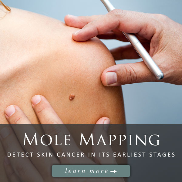 mole mapping knoxville