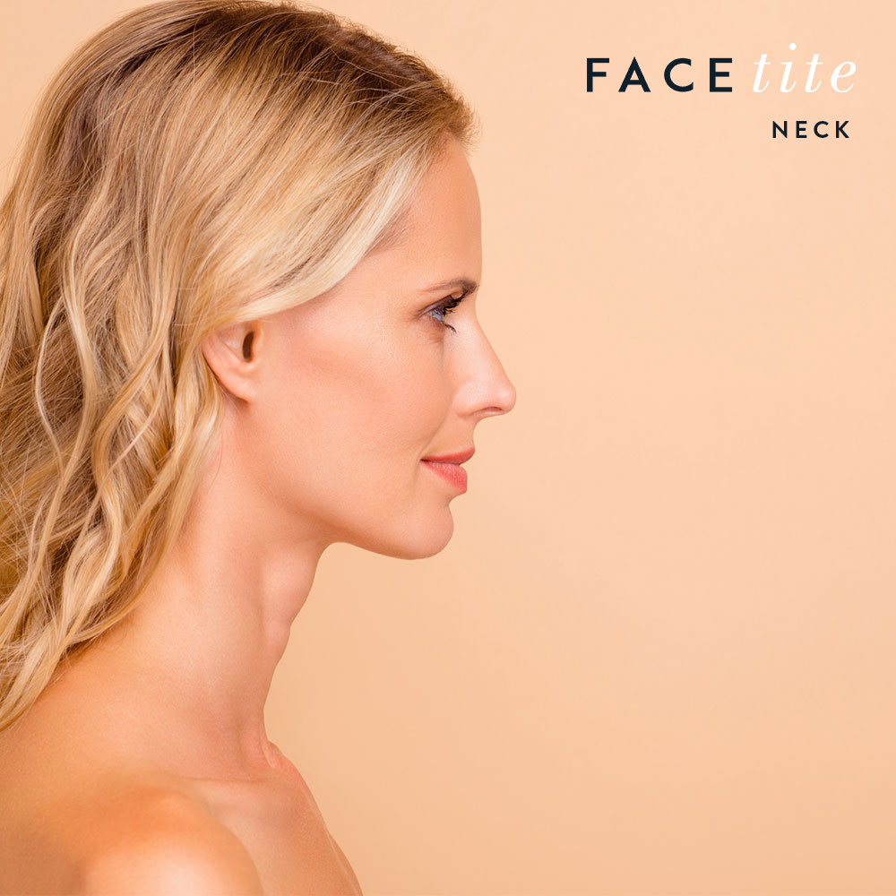 Facial Contouring FaceTite Neck