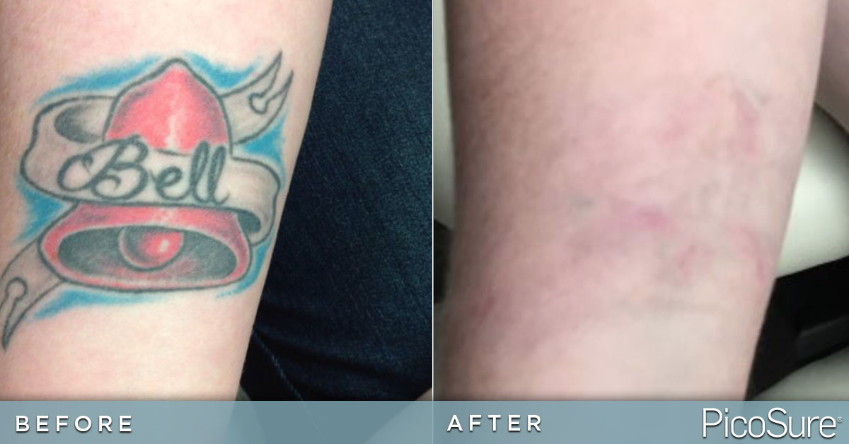 tattoo removal knoxville