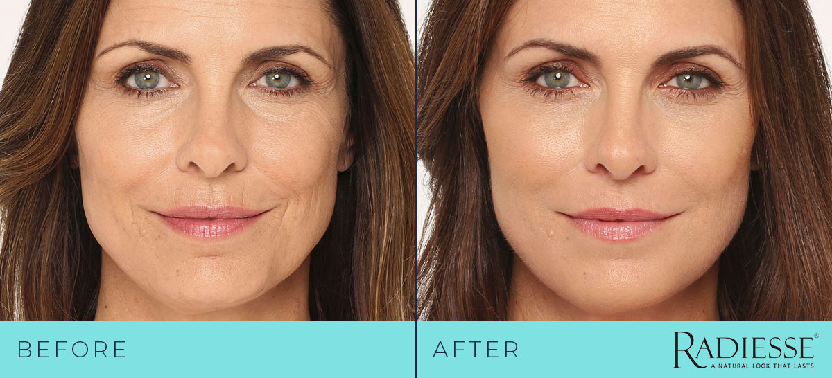 Radiesse lower face filler before and after