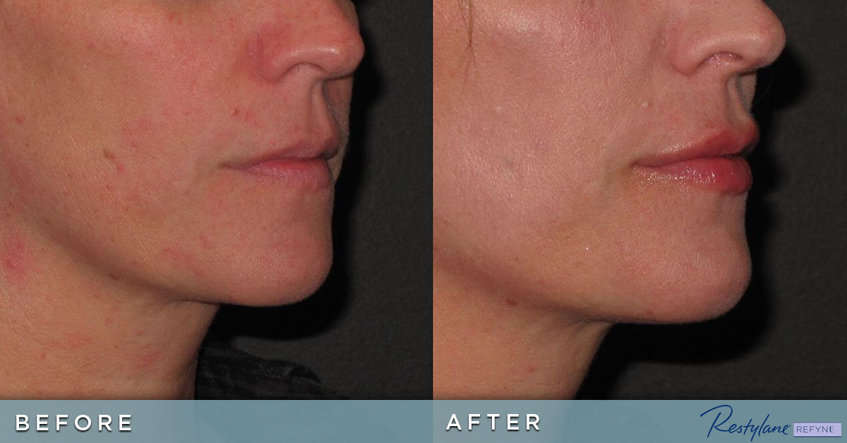 Before and after Restylane injections into lips