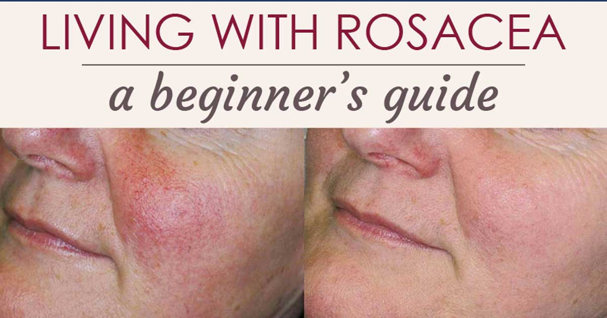 A Beginners Guide to Rosacea