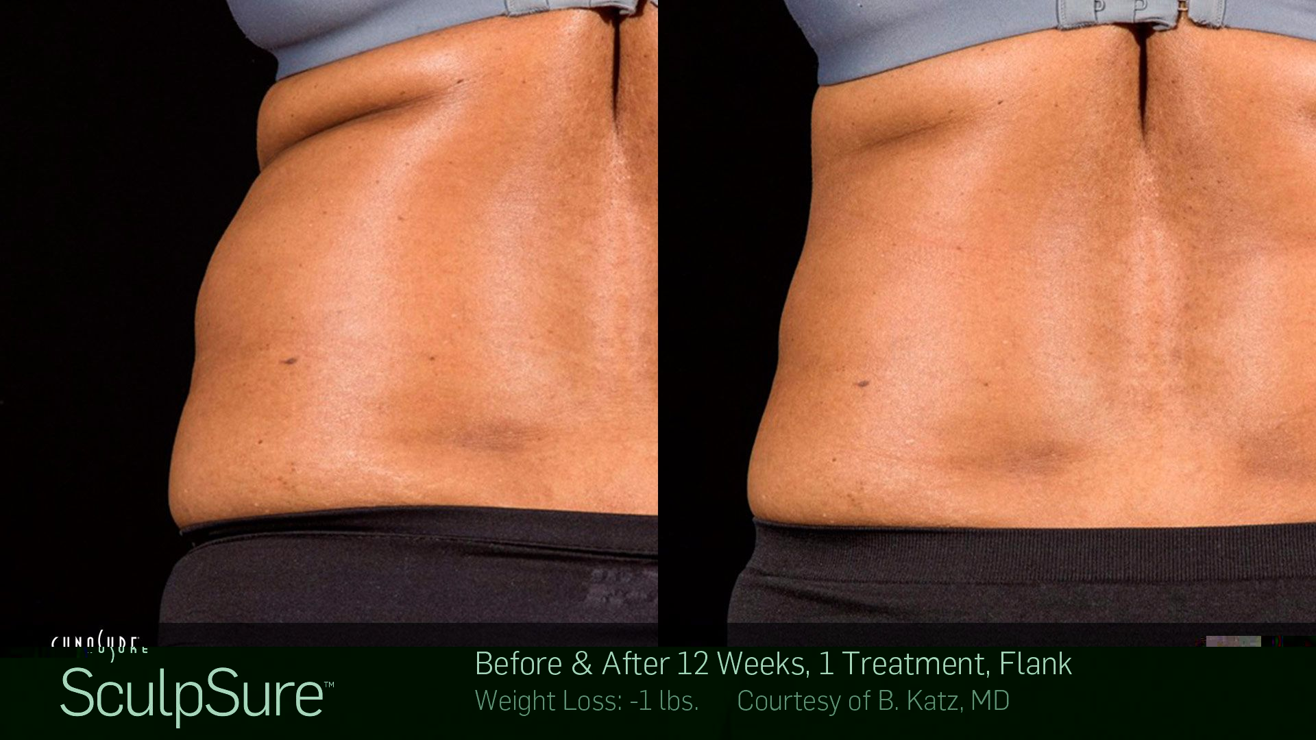 sculpsure knoxville
