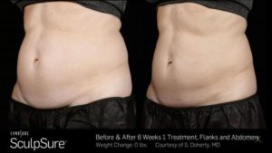 sculpsure before and after pictures
