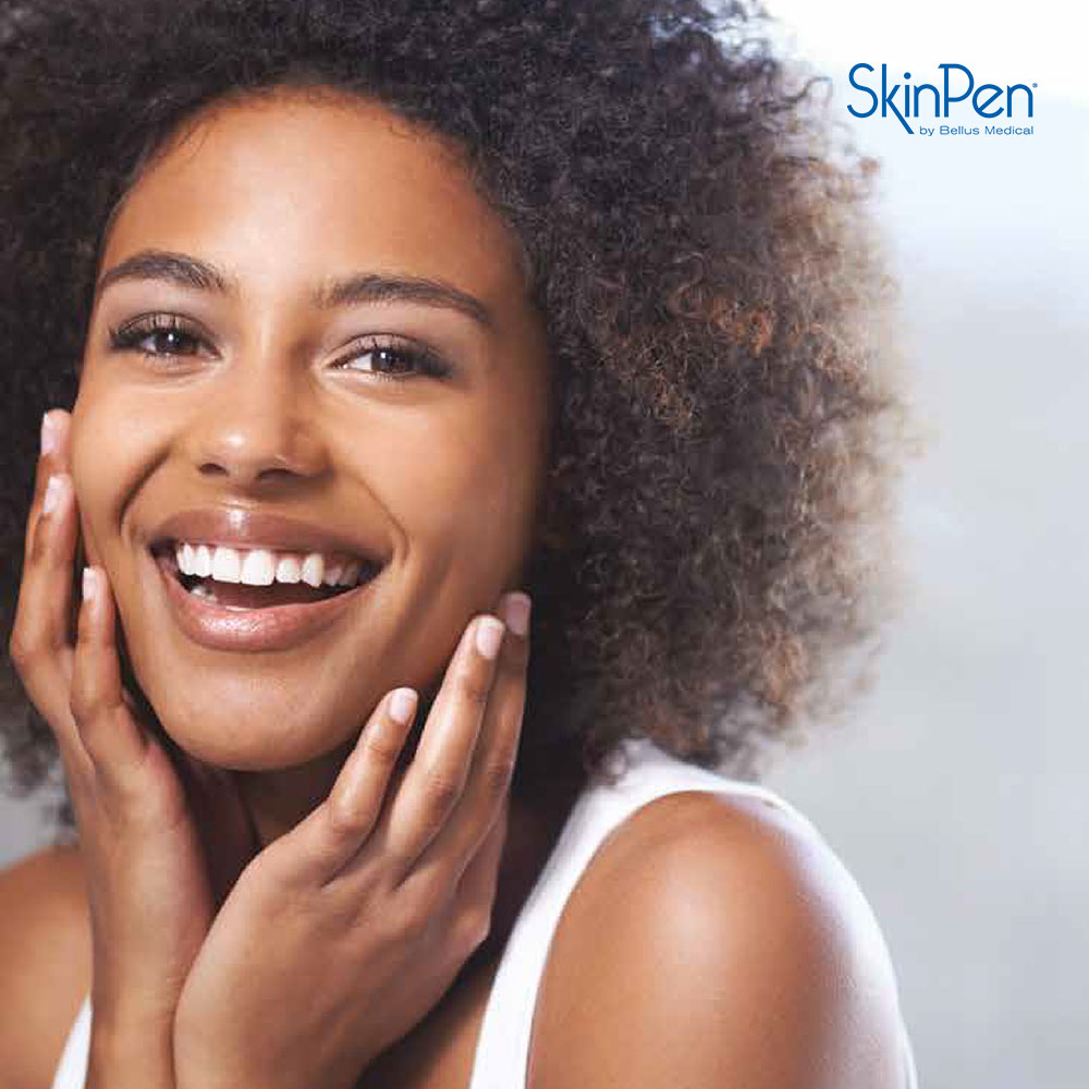 SkinPen Microneedling