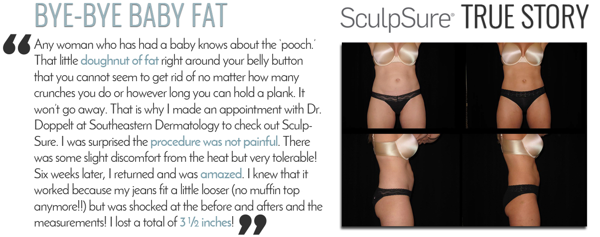 Sculpsure Knoxville TN