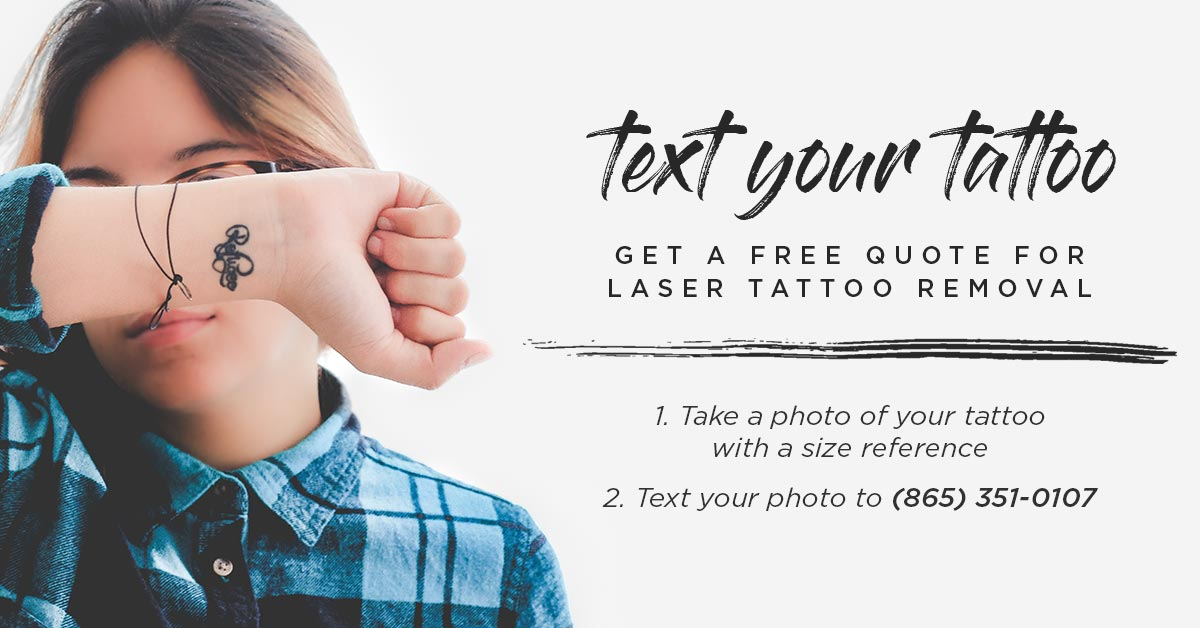 Cost of Laser Tattoo Removal | Text for Free Quote