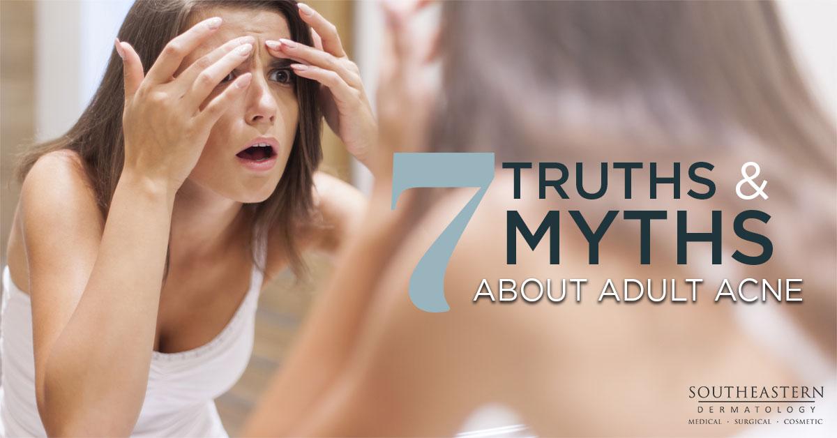 7 Truths & Myths About Adult Acne