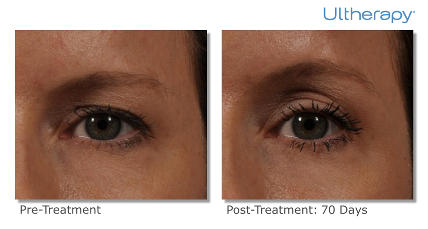 Ultherapy Before And After Photos Cosmetic Dermatology