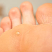 wart on my foot